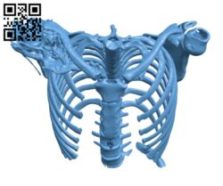Spine with a T10 chance fracture H000650 file stl free download 3D Model for CNC and 3d printer